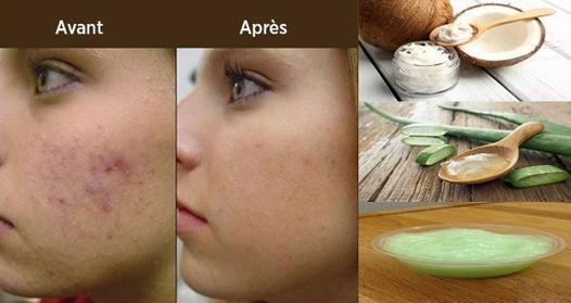 acné huile de coco